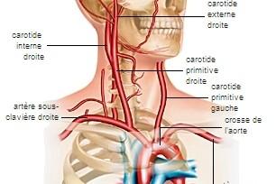 Ecografie Doppler vascular carotide si vertebrale extracraniene (Ex.complet de evaluare carotidiana)