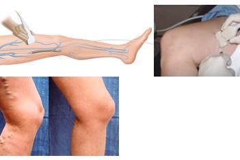 Ecografie Doppler vascular membre inferioare sau superioare!