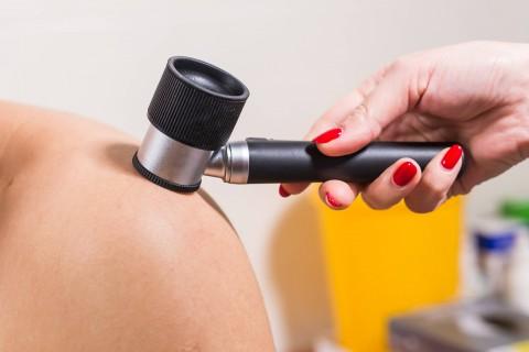 Consult dermatologie + dermatoscopie