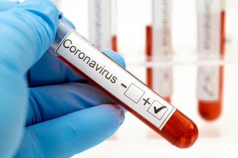 Testare COVID-19: detectie anticorpi (IgG, IgM) screening