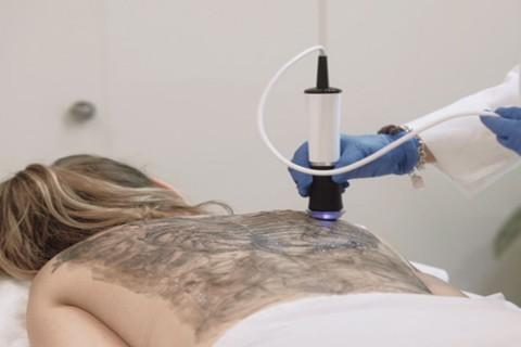 Tratament acnee spate - Oxygeneo
