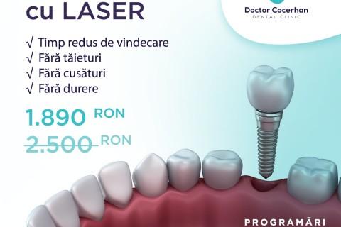 Implant dentar fara operatie sau taieturi!