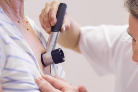 Dermatoscopie + Electrocauterizare papiloame/verugi