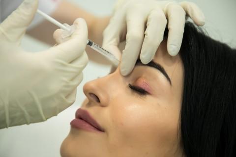Injectare Botox 2 Zone