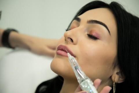 Injectare Botox Pentru Zâmbet Gingival