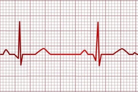 EKG (Electrocardiograma) la domiciliu Bucuresti + zonele limitrofe