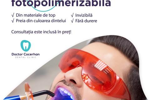 Pachet: Plomba fotopolimerizabila + consult + anestezie + poze