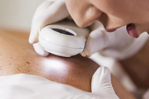 Consultatie dermatologie - Dr. Rosca Tatiana