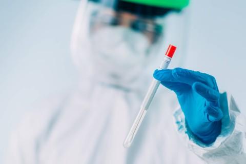 Test PCR